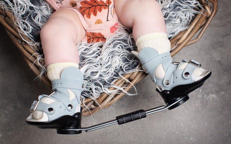 Golfová noha: Eliška se narodila s ortopedickou vadou, se kterou se bude potýkat celý život