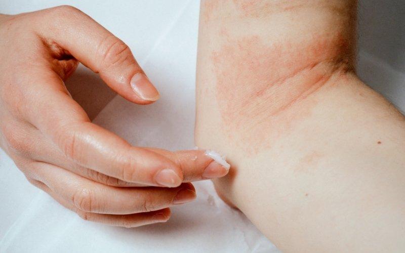 Atopický ekzém pod kontrolou: Pomůže promazávání kůže a omezení kontaktu s alergeny